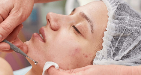 Australian Skin Clinics Bankstown